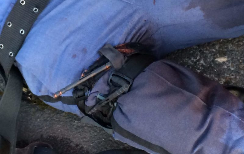 A photo of a police officer's leg showing two, side-by-side CAT tourniquets properly applied to stop massive hemorrhage